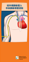 Guide to Peripherally Inserted Central Catheter_Chi.png