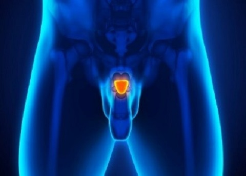 Coping with Sexuality after Prostate Cancer Treatment - Virtual Cancerwise Workshop