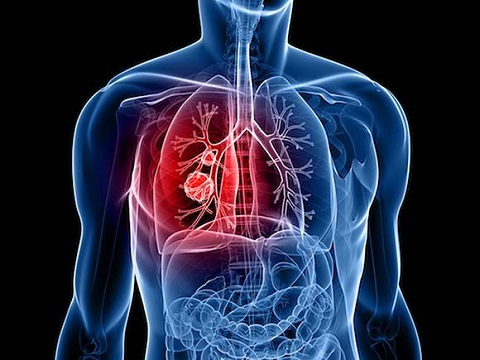 Prevention & Management of Side Effects from Lung Cancer Treatment - Virtual Cancerwise Workshop