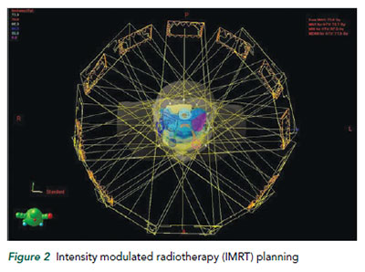 Intensity modulated radiotherapy (IMRT) planning - - National Cancer Centre Singapore